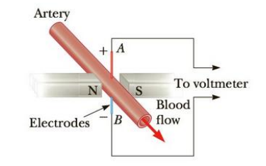 Chapter 19, Problem 69AP, Using an electromagnetic flowmeter (Fig. P19.69), a heart surgeon monitors the flow rate of blood