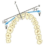 Chapter 4, Problem 38P, A certain orthodontist uses a wire brace to align a patients crooked tooth as in Figure P4.88. The