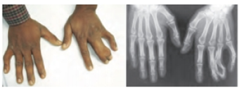 Chapter 18, Problem 2CT, The photos shown above illustrate a case of synpolydactyly, a genetic abnormality characterized by
