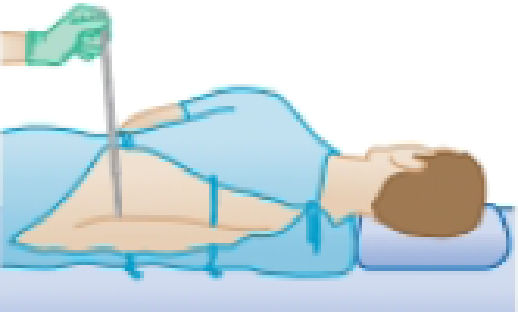 Chapter 14, Problem 8P, The human brain and spinal cord are immersed in the cerebrospinal fluid. The fluid is normally